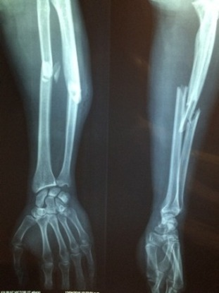 bone 40kb PG in Medicine